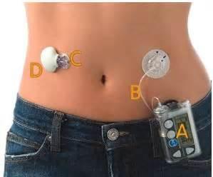 Diabetes Mellitus   السكري
